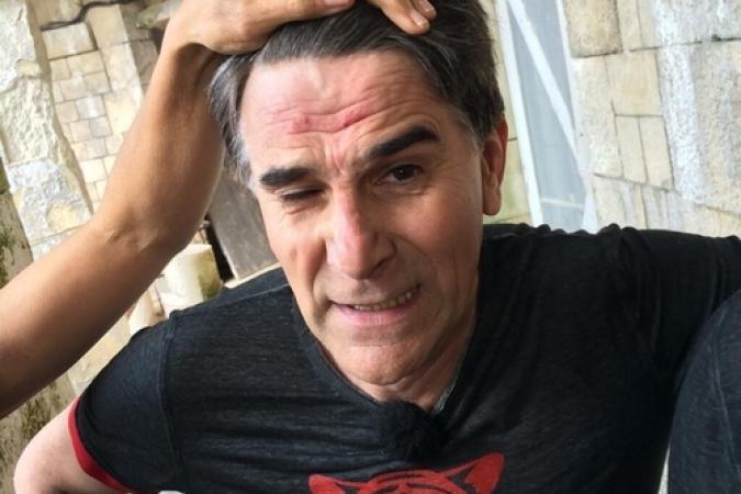 Fort Boyard 2014 : Tex après ses chutes dans le Percolateur (05/07/2014)